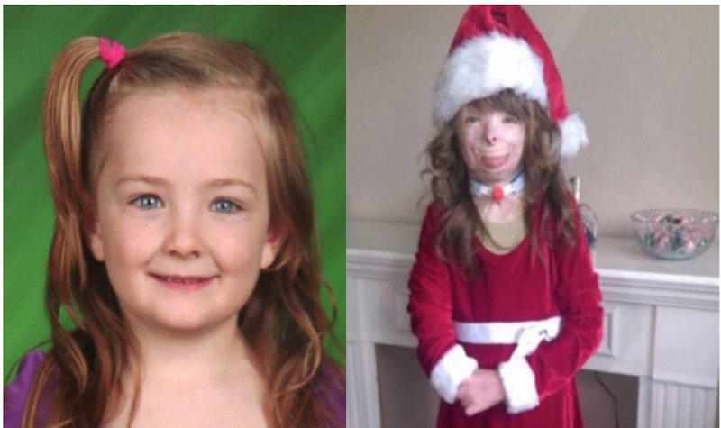 Girl with severe burns only wants cards for Christmas | East Idaho ...