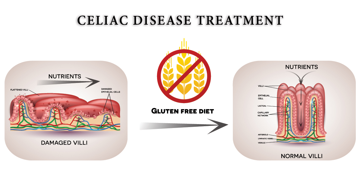 in patients with celiac disease, nutrients are not absorbed because of  reduced surface area  a gluten-free diet leads to healthy intestinal villi,