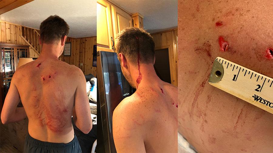 Bear attack Tom Whitney injuries